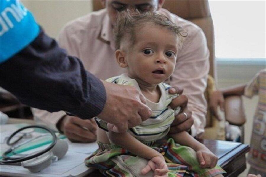 برنامه جهانی غذا درباره مرگ میلیون ها یمنی هشدار داد